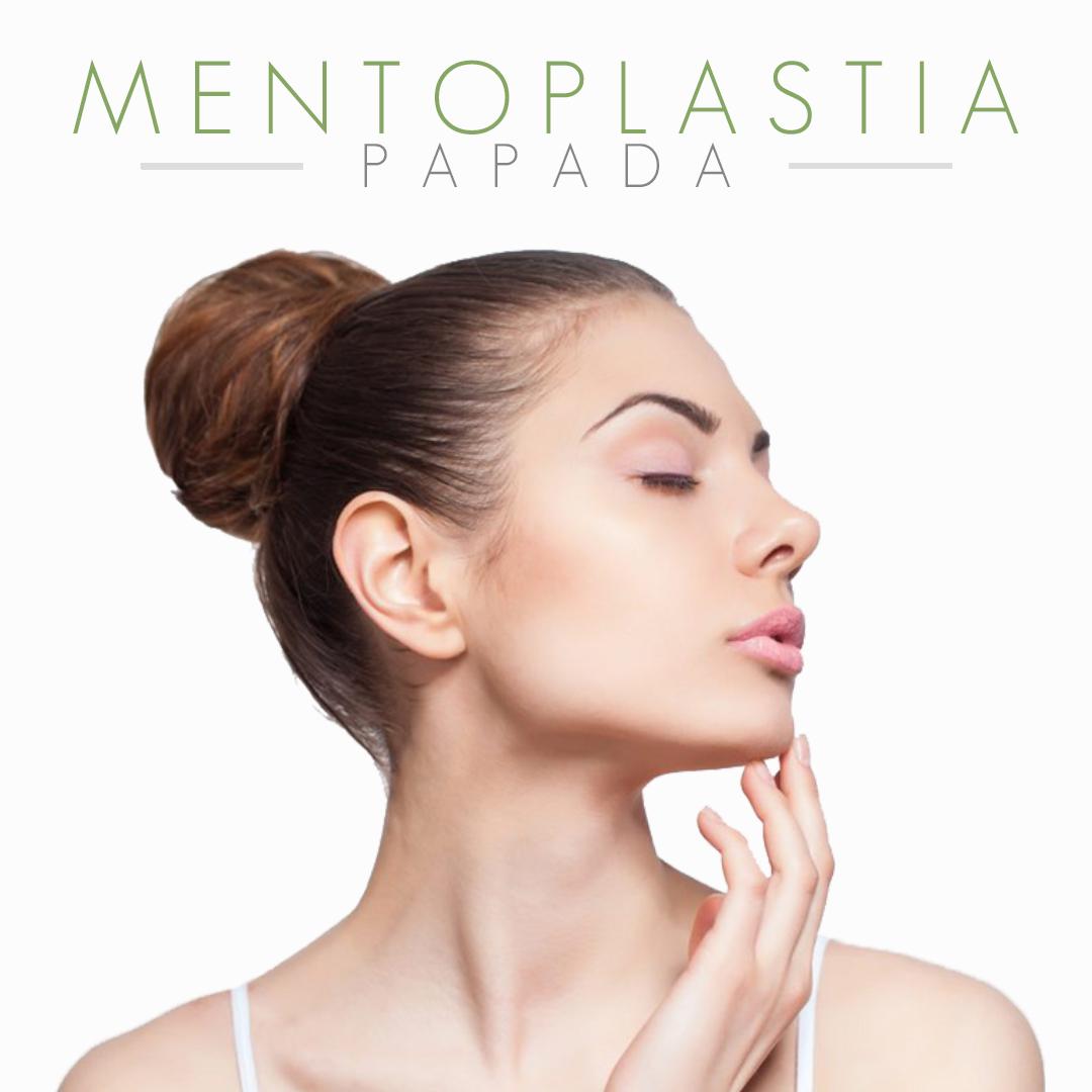 Imagem do produto MENTOPLASTIA