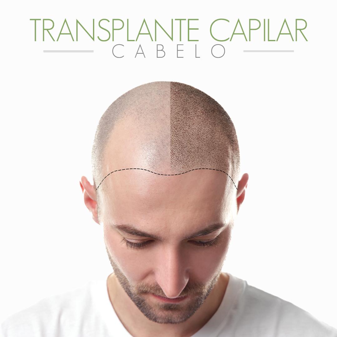 Imagem do produto TRANSPLANTE CAPILAR