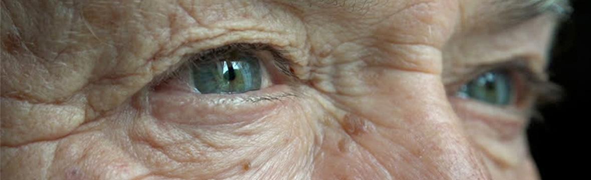 Glaucoma: uma doença silenciosa